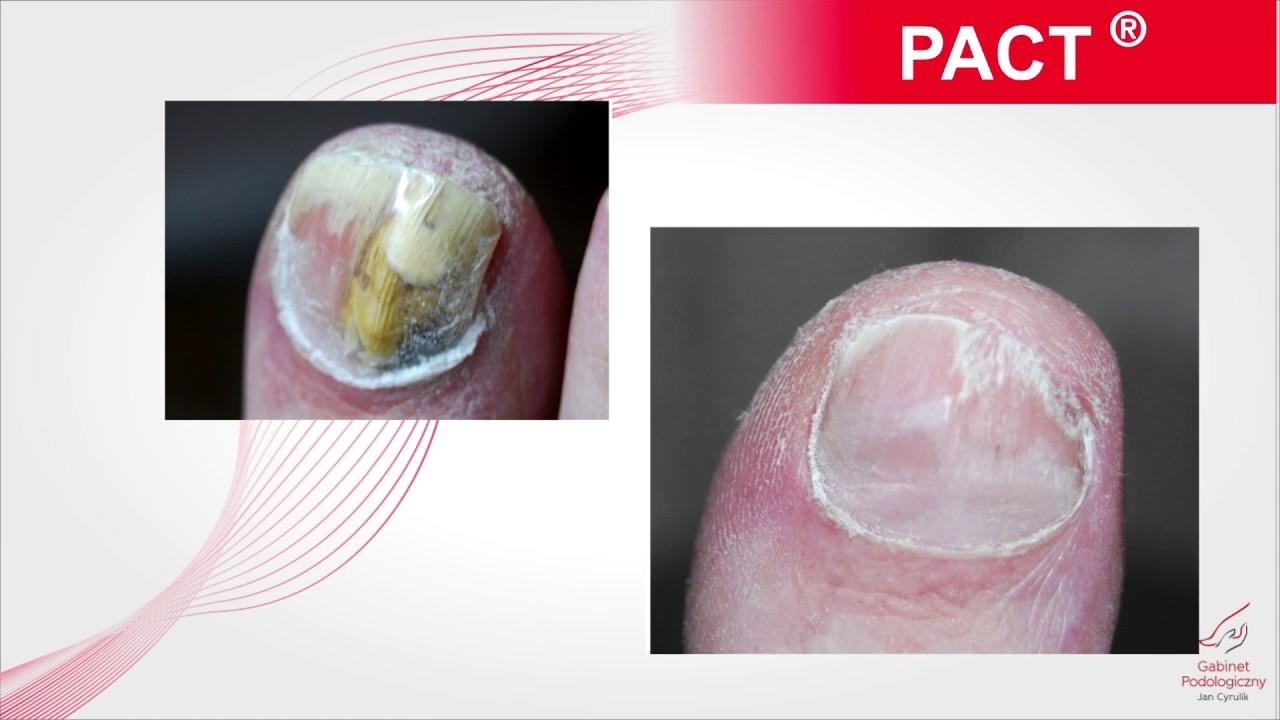 Лечение грибка ногтей Pact Med - YouTube