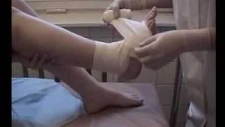видео Бандаж на колено: фиксирующий, эластичный, повязка
