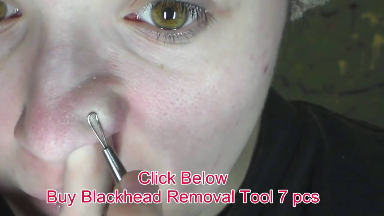 Blackhead Acne Extractor Remover Tool Kit 7pcs Blackhead Acne Comedone  Pimple