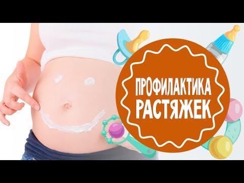 Профилактика растяжек во время беременности