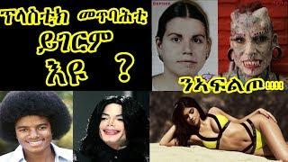ፕላስቲክ መጥባሕቲ ይገርም እዩ?/ንኣፍልጦ !!!!!what is plastic surgery?Hidmona Tv2