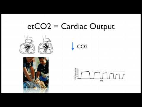 Capnography in Cardiac Arrest