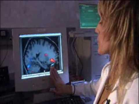 How the Brain Works: Basal Ganglia