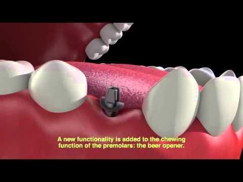 ambient media - Salta Beer Tooth implant