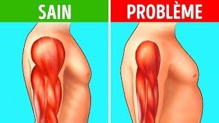 Dégénérescence Musculaire : N'ignore Pas Ces 8 Symptômes Précoces !