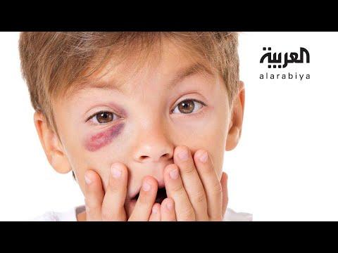 صباح العربية | إحموا عيون أطفالكم من هذه الألعاب  - نشر قبل 3 ساعة