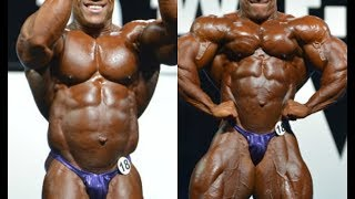 Phil Heath Hernia Surgery