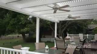 Why Choose a Heartland Pergola?