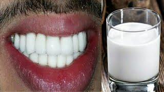 In just 4 minutes it will make dirty teeth shiny like pearl / teeth whitening  / teeth whitening
