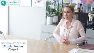 Lazerle Sivilce (Akne) Tedavisi - Dermatolog Dr. Aslı Eralp