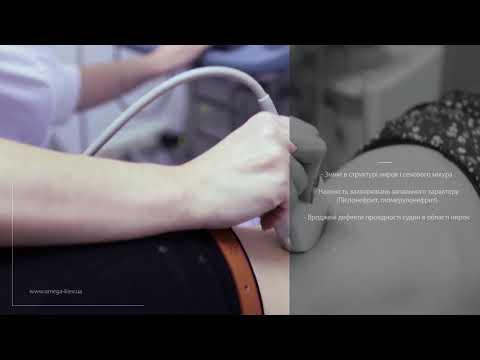 УЗИ почек - как проходит процедура, что показывает и как подготовиться