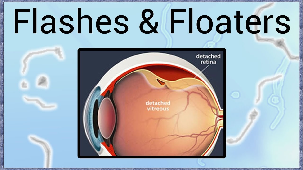 flashes & floaters - a sign of retinal detachment - youtube, Skeleton