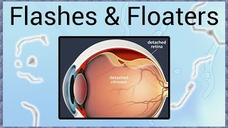 Flashes & Floaters - A Sign of Retinal Detachment