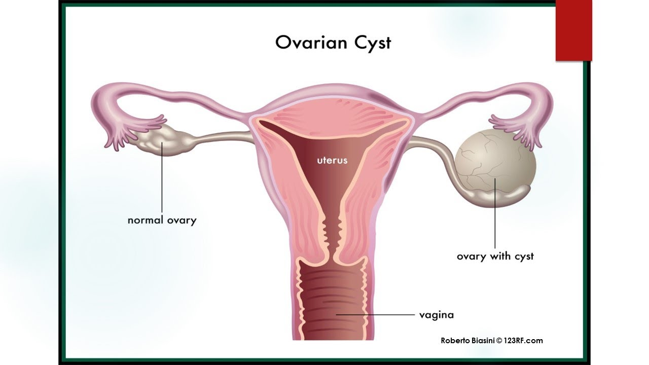 RCOG Guideline The Management of Ovarian Cysts in Postmenopausal Women No 34