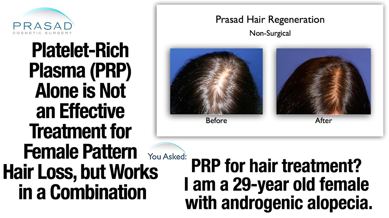 Prp Alone Has Limited Effect On Female Hair Thinning But