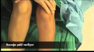Bacak Estetiğinde Superdry Teknik