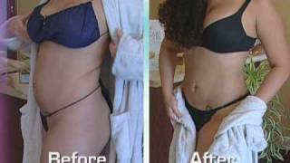 SmartLipo and Tumescent Liposuction (Liposculpture)