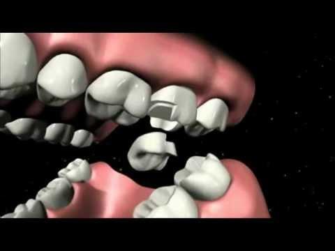Zahnfüllung rausgefallen