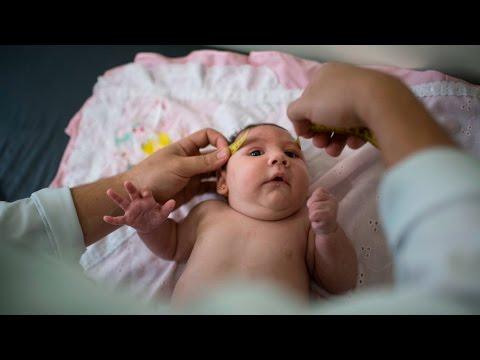 Bebés virus Zika con la cabeza más pequeña, mosquitos causan caos en las mujeres embarazadas.