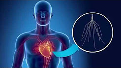 The dangers of IVC filters - and action you can take