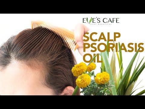 சொரியாசிஸ் குணப்படுத்தும் எண்ணெய்   Anti-Psoriasis Herbal Hair Oil Preparation (Tamil)