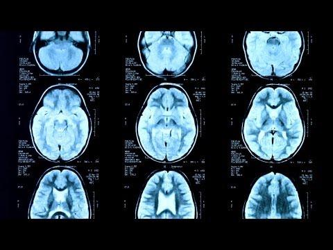 Seizures vs. Epilepsy | Epilepsy
