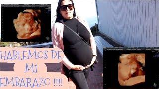 Actualización de mi Embarazo, Cuanto peso,tengo estrías,acne