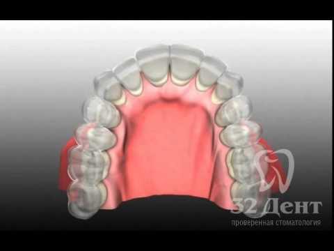 Институт Базальной Имплантации — базальная имплантация зубов