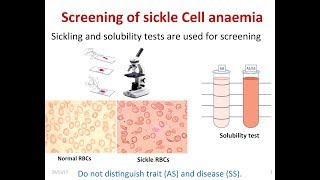 How to screen sickle cell Anemia (Complete information with principle)
