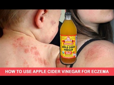 how-to-use-apple-cider-vinegar-to-treat-eczema,-it's-unbelievably-effective