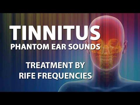 tinnitus-(phantom-ear-sounds)---rife-frequencies-treatment---energy-&-quantum-medicine