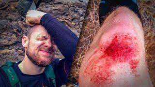 LA PALMA: Der Unfall Sturz beim Trailrunning | Instastory Fritz Meinecke
