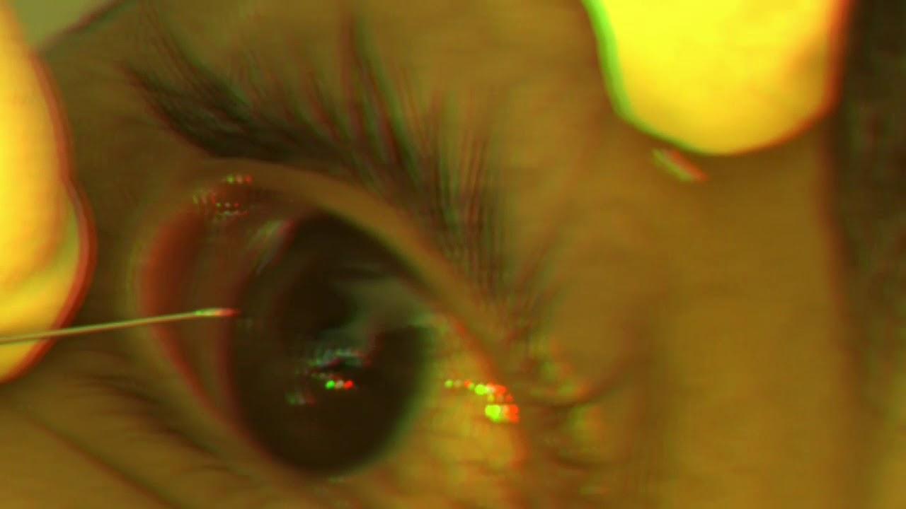 como sacar algo dentro del ojo