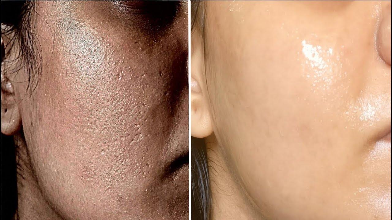 como cerrar los poros de la cara definitivamente
