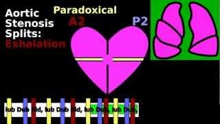 Split S2 Cardiac Auscultation: Inspiration, Wide, Paradoxical, Fixed | Pulmonic Aortic Stenosis, ASD