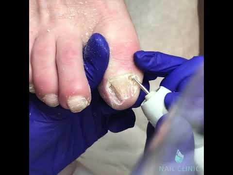 Лечебный педикюр при грибке ногтей в спб
