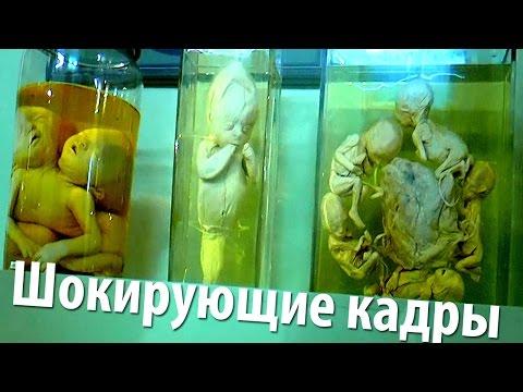 16+ Коллекция уродцев Петра I (Нифедыч в Кунсткамере)