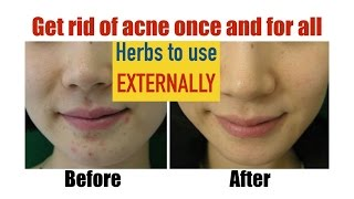 ✔ Natural Remedies for Acne with precise dosage and formulas (Herbs to use externally)