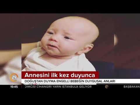 Doğuştan duyma engelli olan minik bebeğin annesini ilk kez duyduğunda