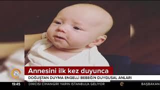 Doğuştan duyma engelli olan minik bebeğin annesini ilk kez duyduğunda kameralara yansıyan anlar