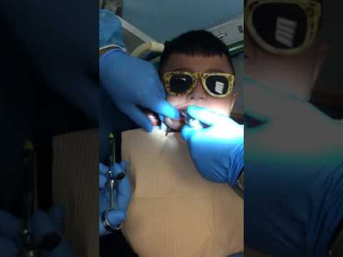 local anesthesia with air technique Dr. Ali Baba Attaie hellsomile pediatric dentistry