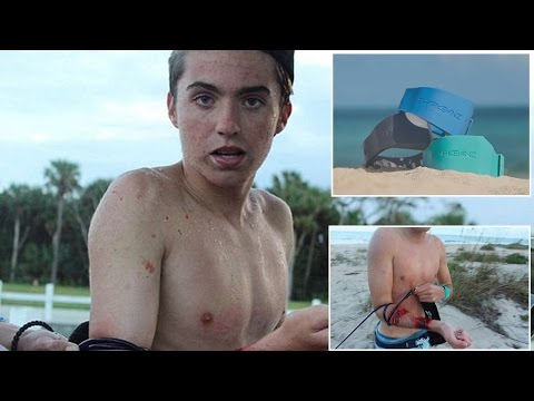 Thumbnail: Teen Surfer Survives Shark Attack Despite Wearing Band Meant To Repel Them