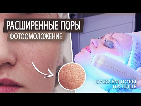 Как сузить поры на лице. Уход за проблемной кожей. Чистка лица. Расширенные поры