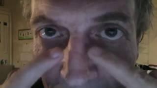 Schnupfen , verstopfte Nase - schnelle Hilfe ohne Medikamente