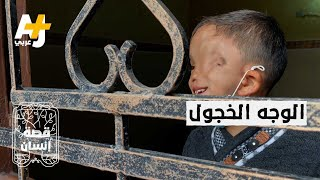 """""""الغلبان"""" طفل فلسطيني بنصف وجه.. والده: لم أعد أحتمل نظرات الناس"""
