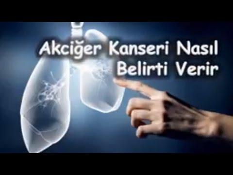 Akciğer Kanseri Nasıl Belirti Verir