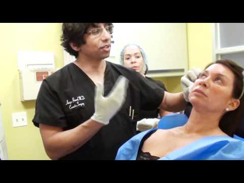 About The Vampire Facelift™ by Dr. Amiya Prasad @ Prasad Cosmetic Surgery, New York
