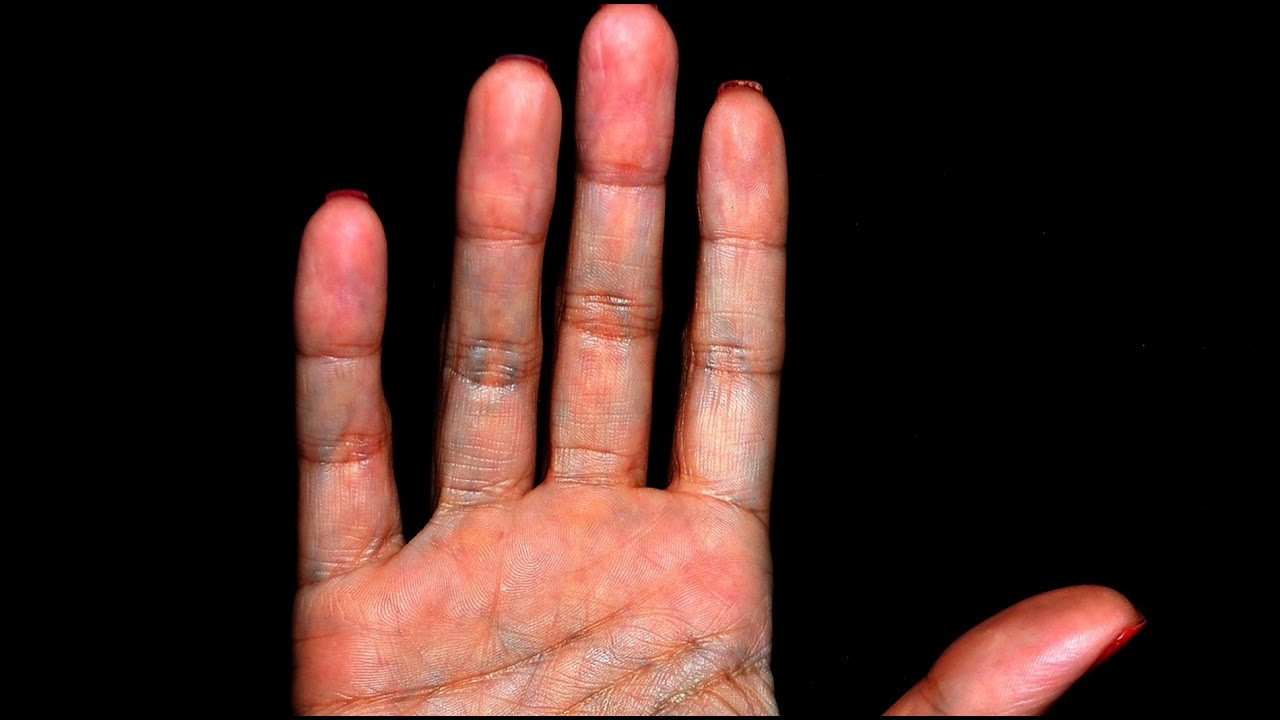 how to read your palm print What palm reading secrets do your hands reveal the drawings below show the main markings for a person who is seeking romance and love it would be rare for all of these indicators to appear on a person's hand.