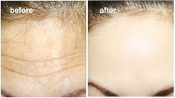 1 Smart trick to Rapidly Remove Wrinkles & Fine lines on Forehead In 2 Days