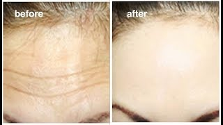 Wrinkles Removal - 1 Smart trick to Rapidly Remove Wrinkles & Fine lines on Forehead In 2 Days